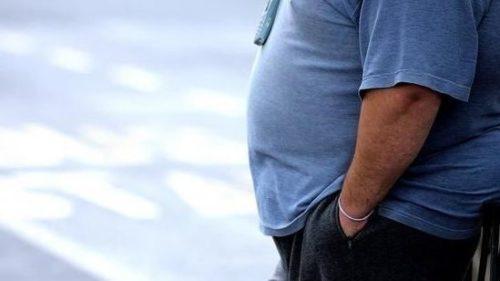 دراسة جديدة  تحذر.. عمليات جراحة السمنة خطر على حياة الأزواج