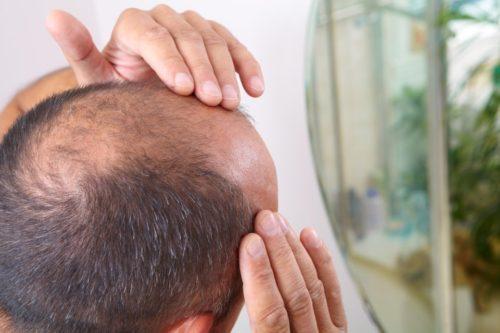 """تساقط الشعر.. علماء يكتشفون طريقة علاج """"الصلع"""""""
