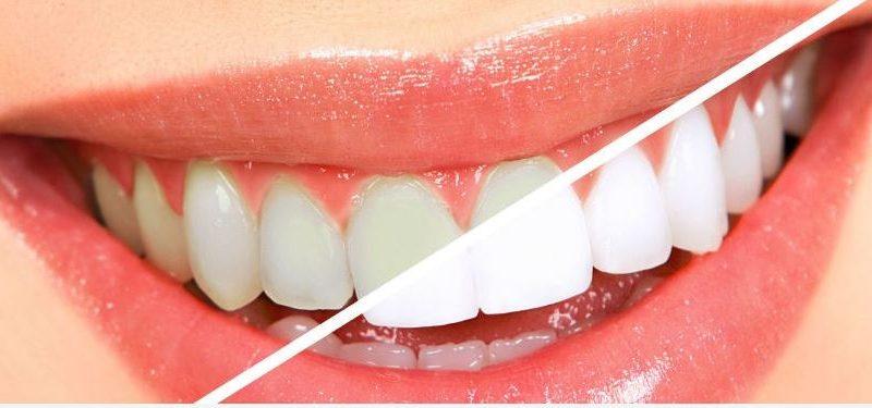 10 طرق طبيعية للتخلص من جير الأسنان